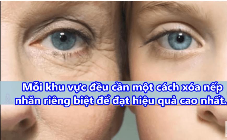 may-xoa-nep-nhan-erada-vietnam