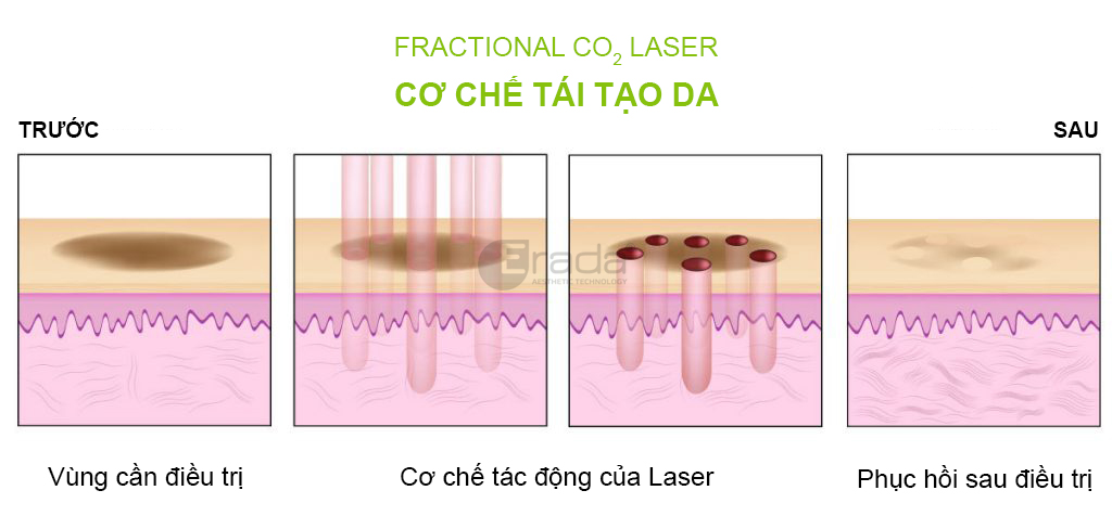 fractional-CO2-laser-cong-nghe-laser-co-che-hoat-dong