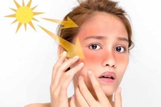 Các tác hại từ tia UV có thể bạn chưa biết
