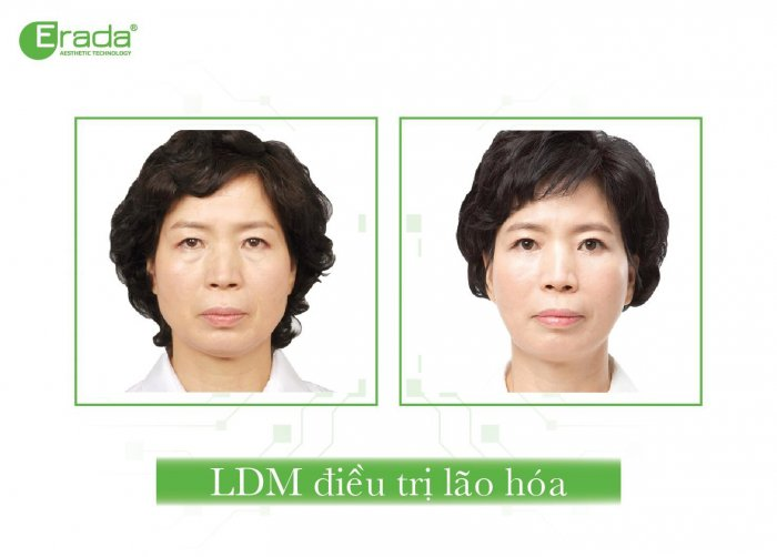 ldm-tre-hoa-da-2