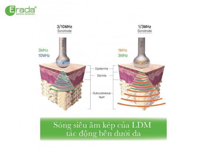 ldm-tre-hoa-da-4