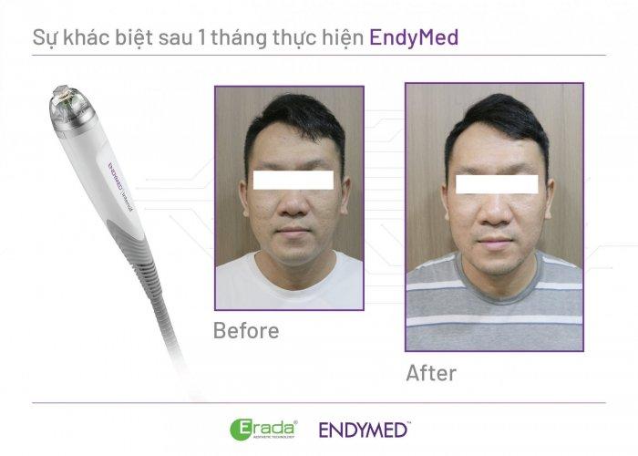 endymed-seo-ro3
