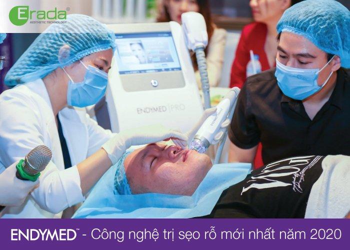 endymed-seo-ro4