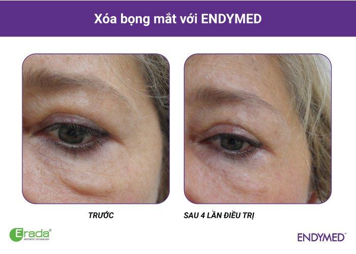 endymed-xoa-nhan1