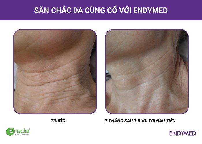 endymed-xoa-nhan2