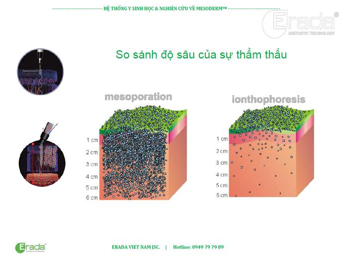 cong-nghe-mesoderm-1