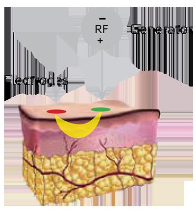 endymed-pro-cong-nghe-3deep-rf-2