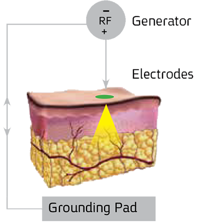endymed-pro-cong-nghe-3deep-rf-3
