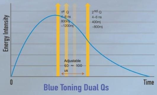 laser-iris-nd-yag-toning-2