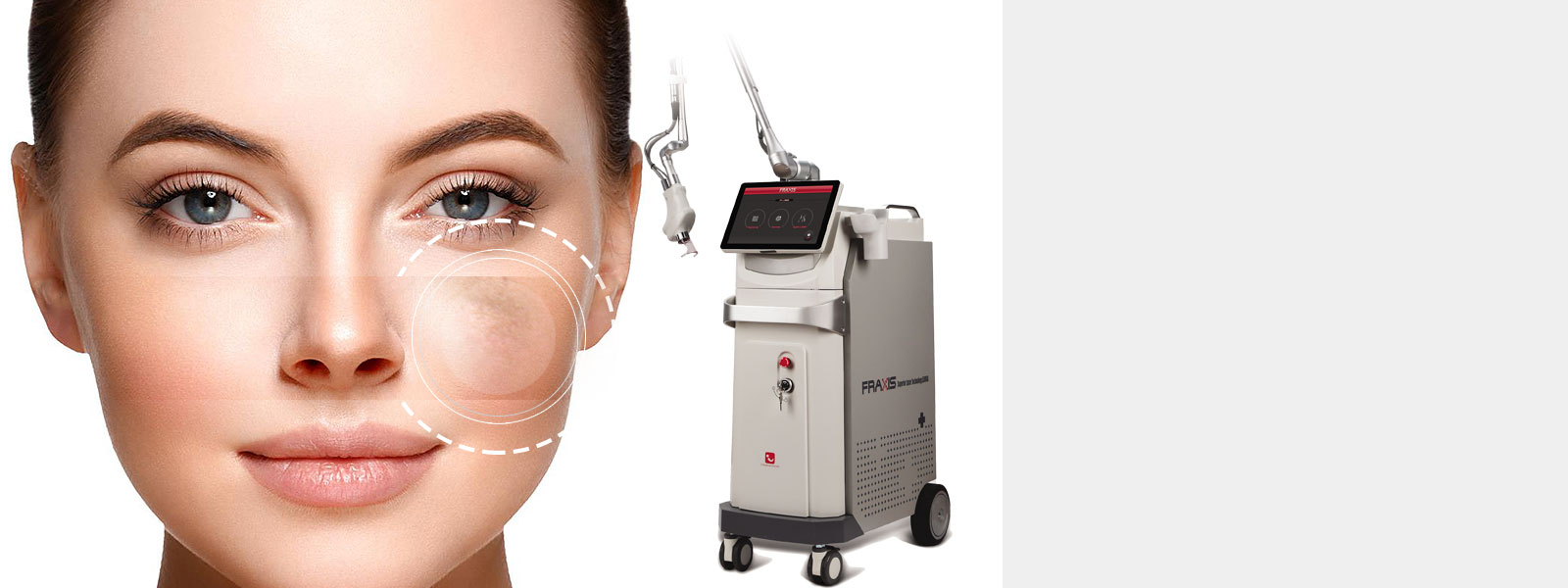 FRAXIS CO2 FRACTIONAL LASER